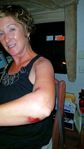 Road rash and bruises on her arm