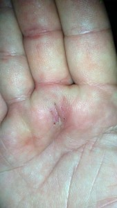 Incision healing and looks okay after pickleball